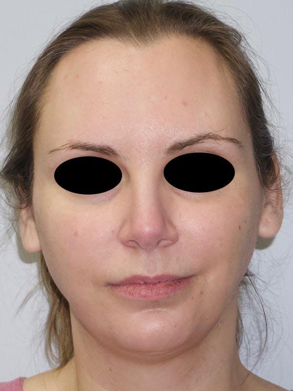 Facial Fat Transfer Gallery - Patient 47434643 - Image 1
