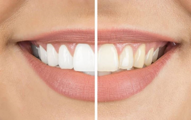 Teeth Whitening East Bay