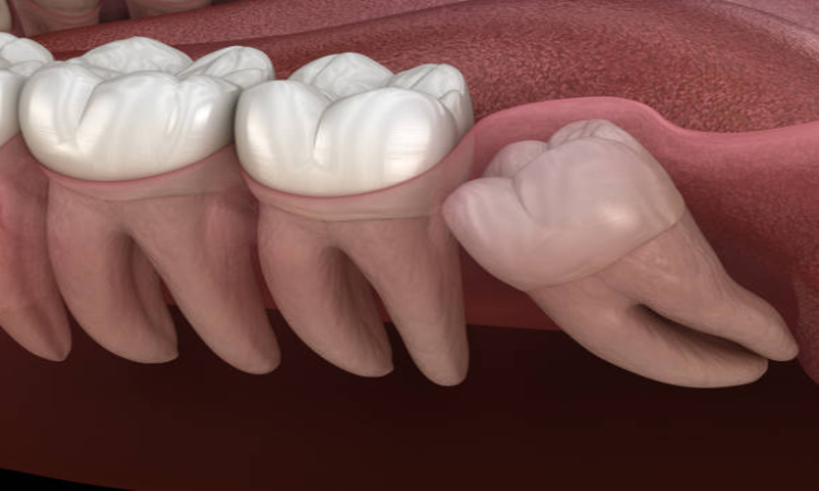 Samadian Cosmetic & Advanced Dentistry Blog | When do wisdom teeth come in?