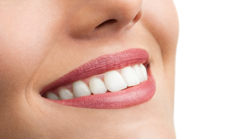 Samadian Cosmetic & Advanced Dentistry Blog | What is a full smile makeover?