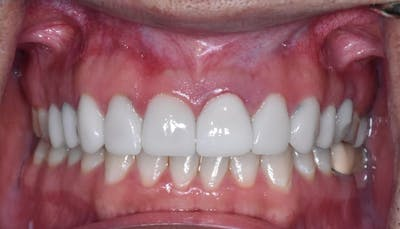 Smile Makeover Gallery - Patient 39578143 - Image 4