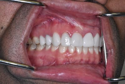 Smile Makeover Gallery - Patient 39578143 - Image 6