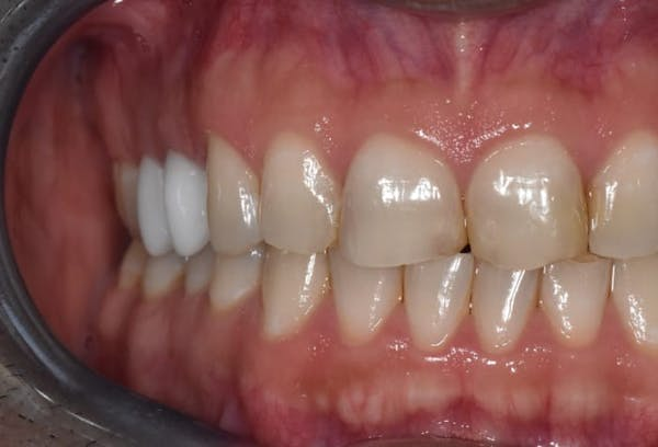 Smile Makeover Gallery - Patient 39578143 - Image 5