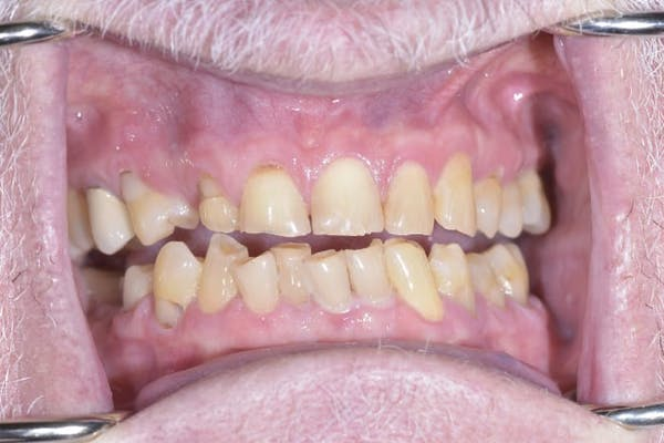 Smile Makeover Gallery - Patient 39578157 - Image 3