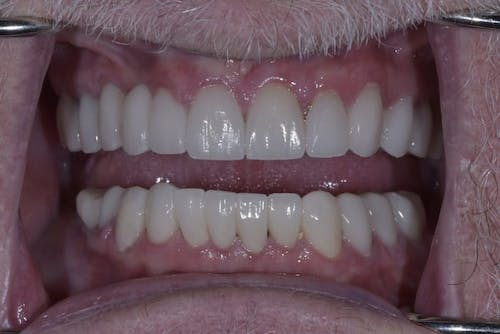 Before and after a Smile Makeover in San Francisco with Dr. Samadian