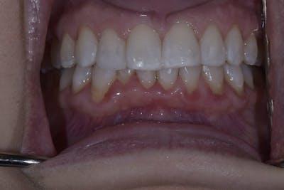 Veneers Gallery - Patient 56174943 - Image 4