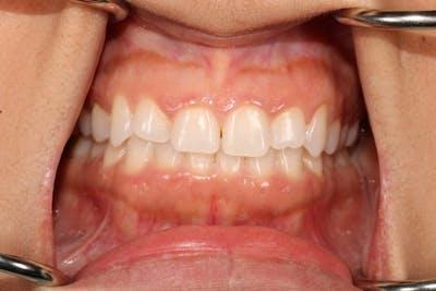 Veneers Gallery - Patient 39774549 - Image 1