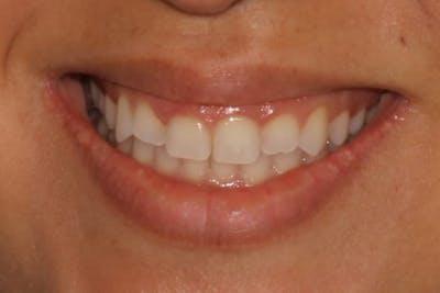 Gum Lift Gallery - Patient 39578175 - Image 3
