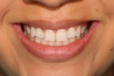 Gum Lift Gallery - Patient 39578175 - Image 4