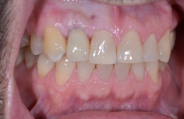 Implant Gallery - Patient 39578182 - Image 2
