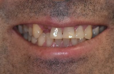 Implant Gallery - Patient 39578182 - Image 3