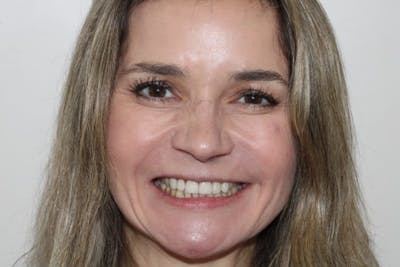Smile Makeover Gallery - Patient 39578467 - Image 1