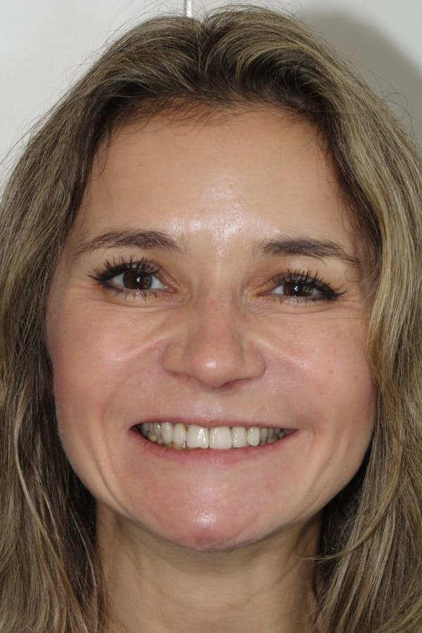 Smile Makeover Gallery - Patient 39578467 - Image 3