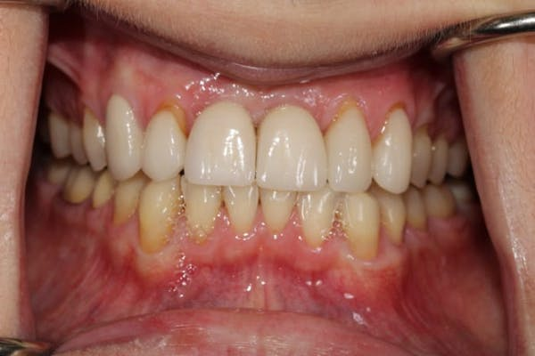 Smile Makeover Gallery - Patient 39578467 - Image 5