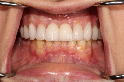 Smile Makeover Gallery - Patient 39578467 - Image 6