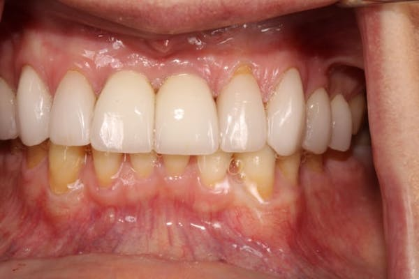 Smile Makeover Gallery - Patient 39578467 - Image 7