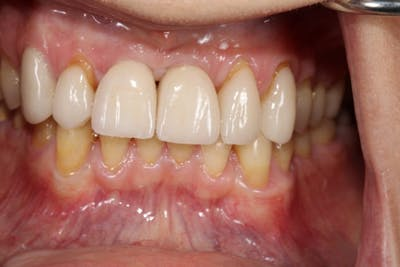 Smile Makeover Gallery - Patient 39578467 - Image 8