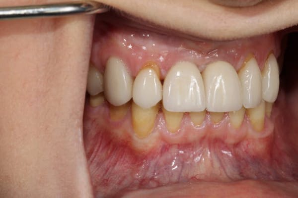 Smile Makeover Gallery - Patient 39578467 - Image 9