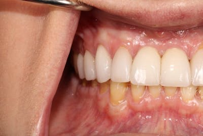 Smile Makeover Gallery - Patient 39578467 - Image 10