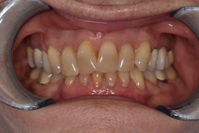 Veneers Gallery - Patient 39578470 - Image 1