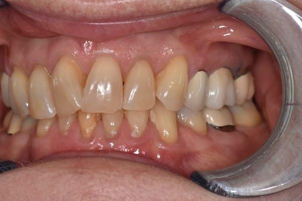 Veneers Gallery - Patient 39578470 - Image 3