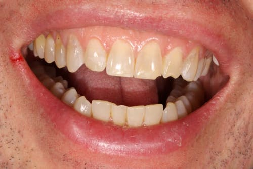 Before and after Dental Bondings in San Francisco with Dr. Samadian