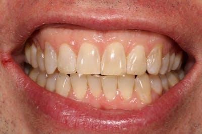 Cosmetic Bondings Gallery - Patient 39578472 - Image 2