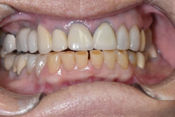 Smile Makeover Gallery - Patient 39578480 - Image 1