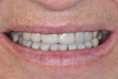 Smile Makeover Gallery - Patient 39578480 - Image 2