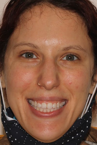 Laser Gum Contouring Gallery - Patient 39578489 - Image 1