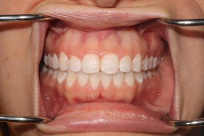Laser Gum Contouring Gallery - Patient 39578489 - Image 3