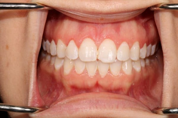 Laser Gum Contouring Gallery - Patient 39578489 - Image 4