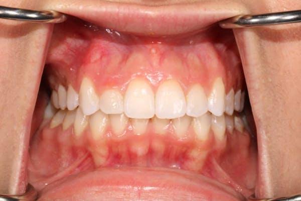 Laser Gum Contouring Gallery - Patient 39578490 - Image 3