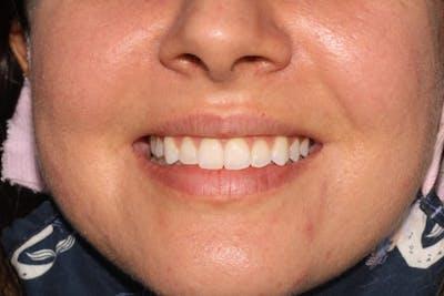 Laser Gum Contouring Gallery - Patient 39578490 - Image 4