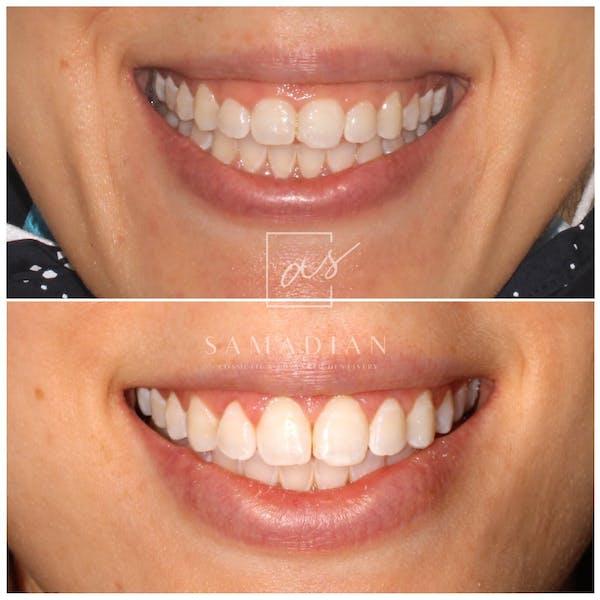 Laser Gum Contouring Gallery - Patient 53271886 - Image 1