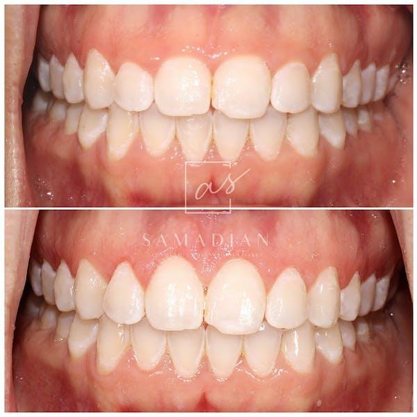 Laser Gum Contouring Gallery - Patient 53271886 - Image 2