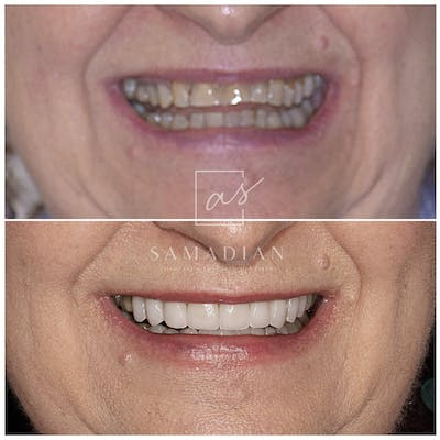 Smile Makeover Gallery - Patient 53271901 - Image 1