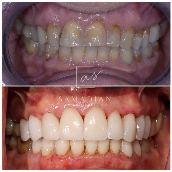 Smile Makeover Gallery - Patient 53271901 - Image 2