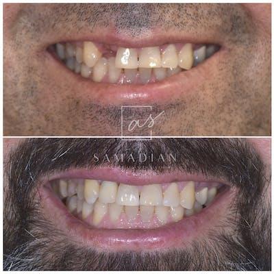 Dental Implants Gallery - Patient 39578182 - Image 1