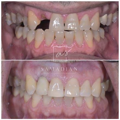 Dental Implants Gallery - Patient 39578182 - Image 2