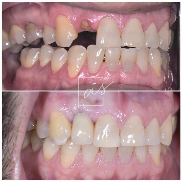 Dental Implants Gallery - Patient 39578182 - Image 3