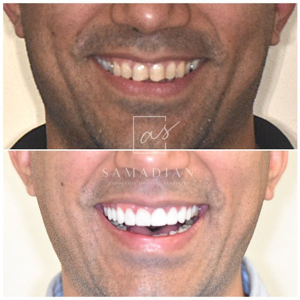 Smile Makeover Gallery - Patient 39578143 - Image 1