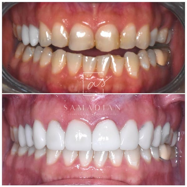 Smile Makeover Gallery - Patient 39578143 - Image 2