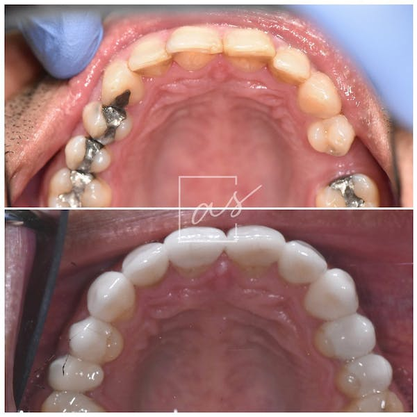 Smile Makeover Gallery - Patient 39578143 - Image 3