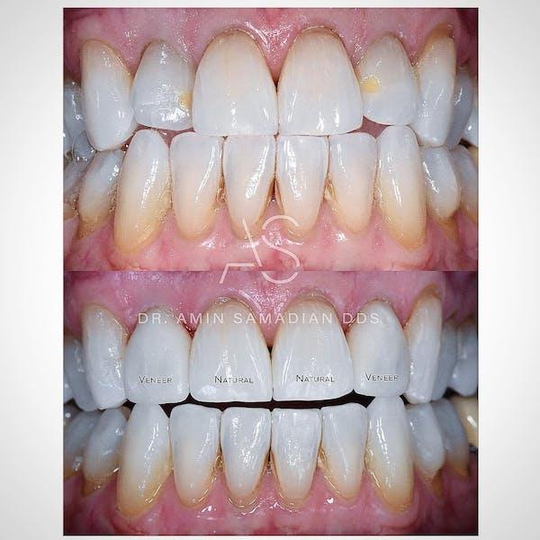 Veneers Gallery - Patient 56175439 - Image 1