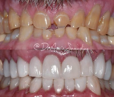 Smile Makeover Gallery - Patient 53276934 - Image 1