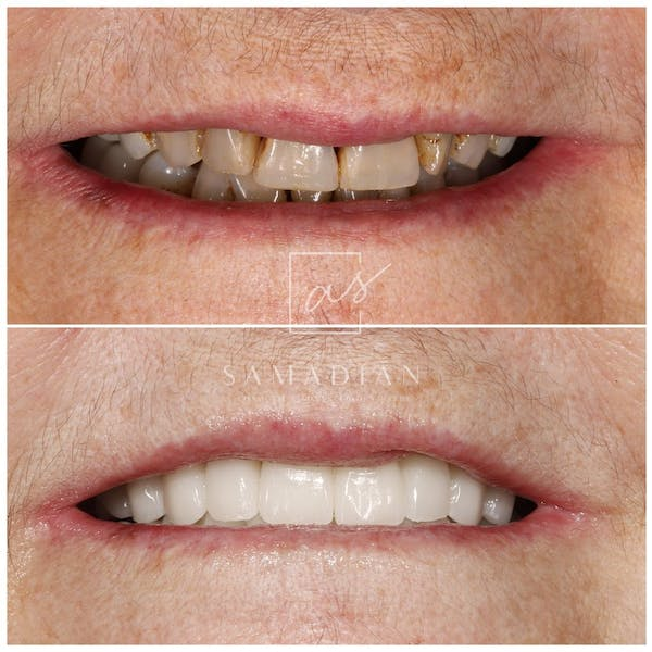 Smile Makeover Gallery - Patient 54674902 - Image 1
