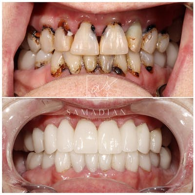 Smile Makeover Gallery - Patient 54674902 - Image 2