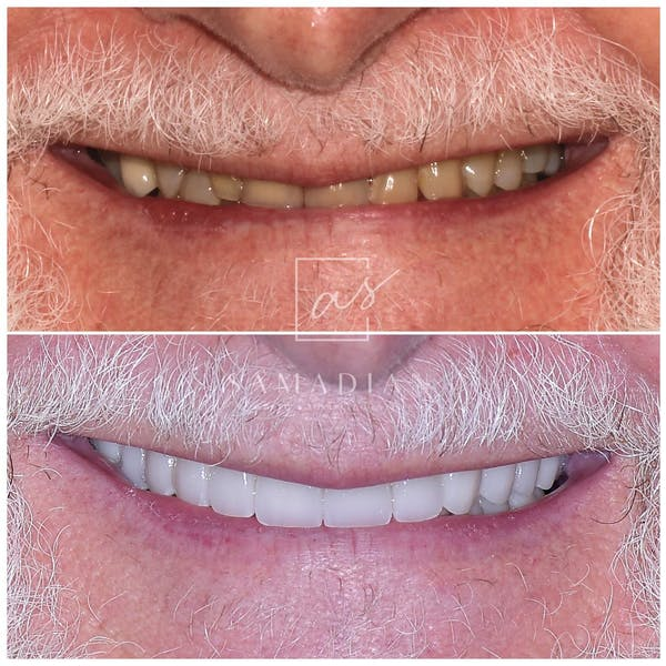 Smile Makeover Gallery - Patient 39578157 - Image 1
