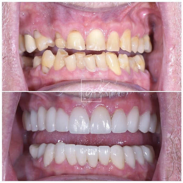 Smile Makeover Gallery - Patient 39578157 - Image 2